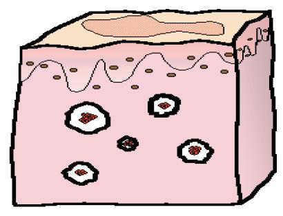 血管病變的成因4