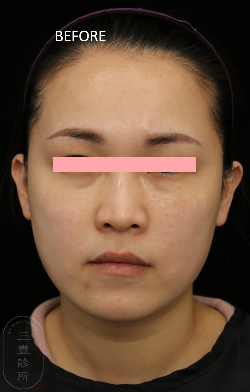 FLX4mth-before