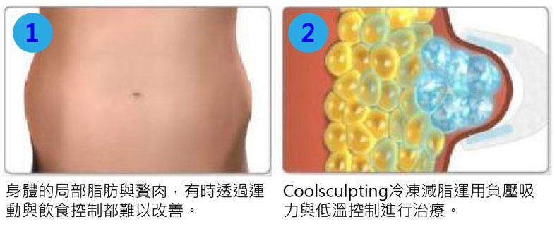 Coolsculpting-4-1