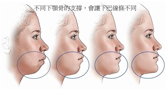 口罩下-最受歡迎的治療之一-3